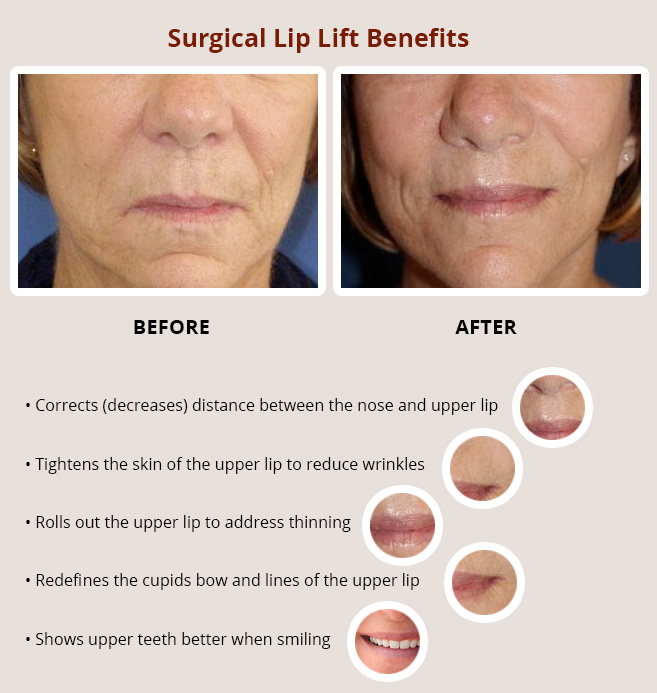 Dr Jacobs' lip lift procedure