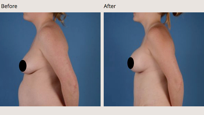 Breast Augmentation surgery by Dr. Eric Culbertson at The Jacobs Center