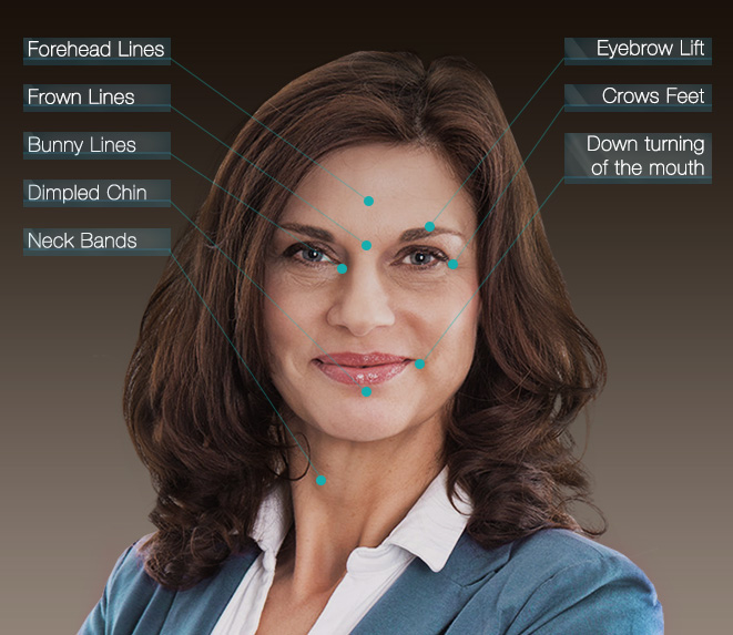 Botox® Treatment Areas offered by Dr. Jacobs in San Francisco