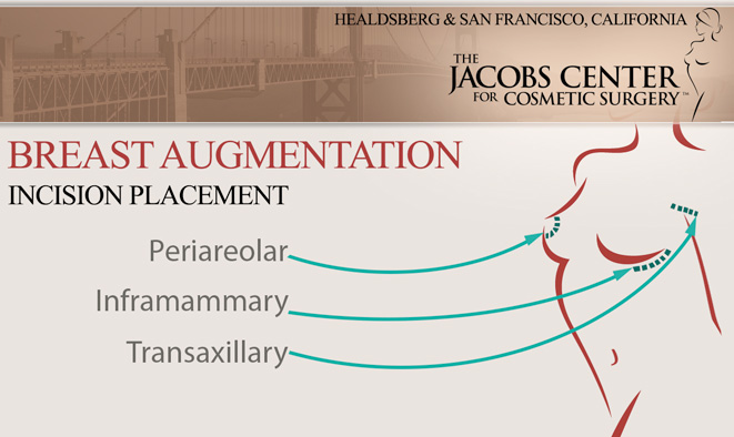 Dr. Eric Culbertson will choose one of several incision options as part of breast augmentation surgery in the San Francisco Bay Area.