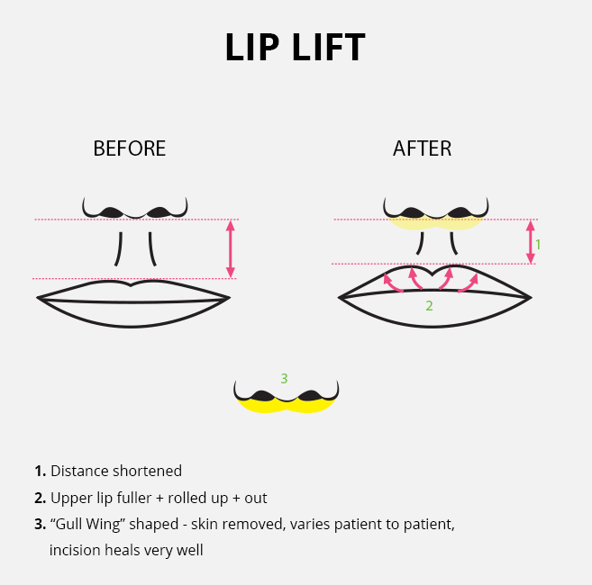Surgical lip lift diagram