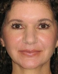 Botox and Juvederm After